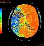 Weill Cornell Medicine Neuroradiology Fellowship
